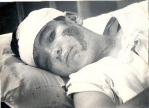 Niño v�tima de un atentado donde participó Montaner