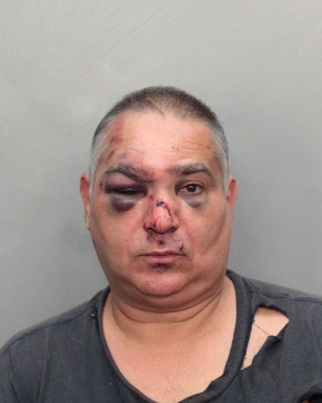 Represión sufrida por el bloguero Varela, golpeado por la policía de Miami