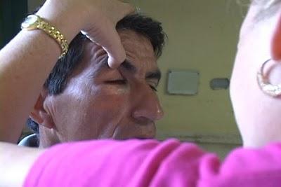 El vecino de Banes, Hermes Matínez, quien iba acompañado de su hijo de dos años, fue golpeado con la hebilla de un cinto que le provocó un trauma ocular de hemorragia y fractura extraorbital del ojo derecho.