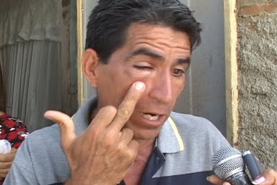 Hermes Martínez, agredido en Banes por los mercenarios pagados por Estados Unidos para realizar acciones violentas en sus comunidades