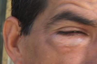 Hermes Martínez recibió una pedrada en un ojo y  los médicos seguirán su evolución varios días.